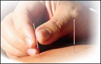 Acupuncture & Wellness Ctr Llc - Homestead Business Directory