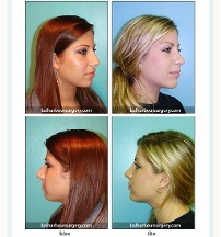 Bal Harbour Plastic Surgery - Miami Beach, FL