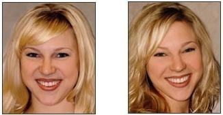 Sutton Advanced Cosmetic Dentistry