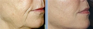 Dr Richard Swift, Jr, MD-Best Plastic Surgeon NYC-Facelift, Liposuction Doctor NYC-Midtown - New York, NY