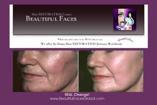 Beautiful Faces Skinrestoration Center