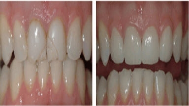 Prestige Dental Yelena Simkha DDS