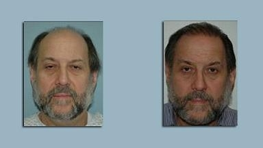 New York Hair Transplant Pros