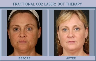 the bassin center for facial plastic surgery