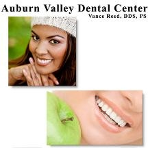 Auburn Valley Dental Center