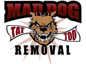 Mad Dog Tattoo Removal