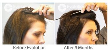 Evolution Hair Centers For Hair Loss Treatment - Tempe, AZ