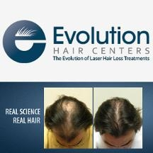 Evolution Hair Centers For Hair Loss Treatment