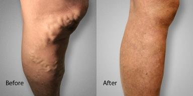 Advanced Varicose Vein Treatments of Manhattan