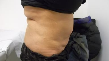 Slimming Solutions Medical Spa