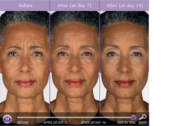 Radiant Images Laser Ctr @ Allure Spa - Mountain View, CA
