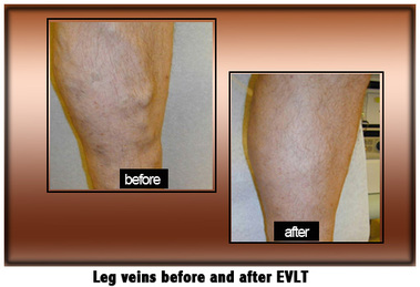 Laser Lipo And Vein Center - O Fallon, MO