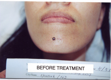 Smooth Laser Tattoo Removal - New York, NY